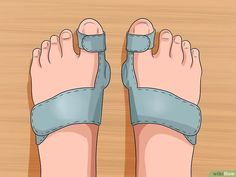 Imagen titulada Get Rid of Bunions Step 8