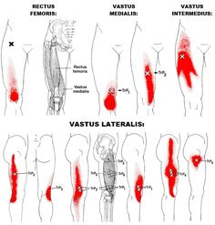 Lateral leg pain, more than just the IT Band — Revo Physiotherapy & Sports Performance Leg Muscles Anatomy, Muscle Anatomy, Fitness Workouts, Quadriceps Femoris, It Band Syndrome, It Band Stretches, Psoas Release, Trigger Point Therapy, Knee Pain Relief