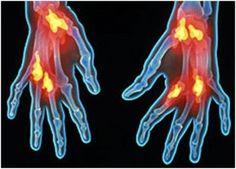 Tratamiento natural para la artritis / 10 consejos que le ayudaran