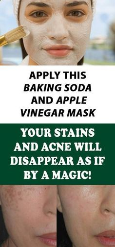 Apply This Baking Soda And Apple Vinegar Mask For 5 Minutes Daily And Watch The Results: Your Stains And Acne Will Disappear As If By A Magic! Health Tips For Women, Health Advice, Health And Beauty, Health Articles, Healthy Women, Healthy Tips, Healthy Drinks, Healthy Recipes, Healthy Weight