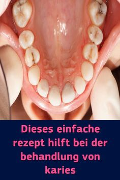 Aphte Im Hals síntomas de diabetes