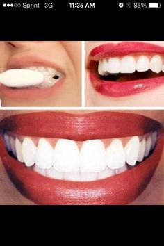 How To Whiten Teeth Instantly. Please Like