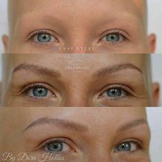 microblading before and after Mircoblading Eyebrows, Blonde Eyebrows, Threading Eyebrows, Thick Eyebrows, Tattooed Eyebrows, Blonde Microblading, Brow Blading, Eyebrow Before And After, Semi Permanent Eyebrows
