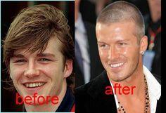 David Beckham teeth before and after - david-beckham Fan Art
