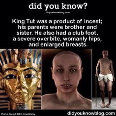 King Tut- ifk how accurate the product pf insest was unless the minor his father impregnated was his aunt. But he did marry his step-sister though. And he did have a clubbed foot