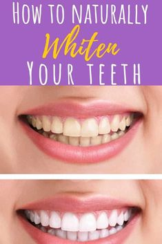 Teeth Whitening Want pearly white teeth? Step away from the chemical-ridden store-bought teeth whitening kits and try one of these easy, at-home natural DIY teeth whitening recipes - for sparkling, white teeth without the harsh ingredients! Teeth Whitening Bleach, Teeth Bleaching, Natural Teeth Whitening, Whitening Kit, Virginia Beach, Teeth Whiting At Home, Skin Care Routine For 20s, White Teeth, Oral Health