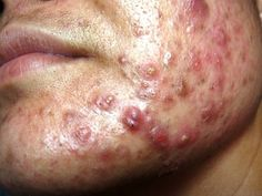 Severe Pimples And Cystic Acne Extraction On Face # 98 Warts Remedy, Pimples Remedies, Skin Care Remedies, Acne Skin, Acne Scars, Best Acne Cream, Cystic Acne On Chin, Pimples On Buttocks, Pimples On Forehead