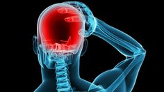 Lançado topiramato para tratamento de enxaqueca em adultos e diversos tipos de epilepsia  Aché lançou o produto Vidmax (topiramato) indicado como tratamento profilático de primeira linha para enxaqueca em adultos, reduzindo a frequência dos dias com dor.
