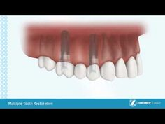 Multiple-Tooth Restoration  repinned by www.everlastimplants.com