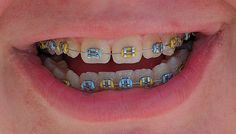 This yellow and blue combo would look great for spring or summer switch! This yellow and blue combo would look great for spring or summer switch! Braces Tips, Kids Braces, Dental Braces, Teeth Braces, Cute Braces Colors, Getting Braces, Invisible Braces, Crooked Teeth, Brace Face