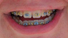 Fashionable Colors for Braces   Teeth Braces Ideas