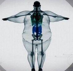 X-ray of a 900lb man. There's no such thing as 'big-boned'. #Zeal Wellness fights #obesity.