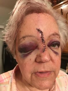 This is my sister.  She was attacked at work on 4/11/17 with a hammer.  PLEASE be a blessing and SHARE my campaign to help her get through the long road ahead to healing.  If you can donate, even $1.00 matters.   PLEASE SHARE, SHARE, SHARE this campaign.   Thank you.   https://www.gofundme.com/vicious-beating-with-a-hammer