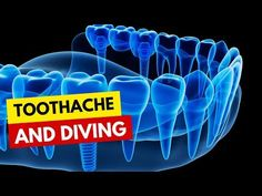 Toothache and Diving Training Programs, Diving, Dan, Neon Signs, Make It Yourself, Youtube, Workout Programs, Scuba Diving, Youtubers