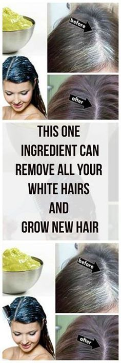 This 1 Ingredients Can Remove All Your White Hairs & Grow New Hair - Health Care and Fitness Tips Healthy Beauty, Healthy Hair, Health And Beauty, New Hair, Beauty Care, Beauty Hacks, Hair Remedies, Tips Belleza, Beauty