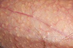 Sejenis virus yang sangat menular menjadi penyebab penyakit ini adalah Human Papilloma Virus, atau sering disingkat dengan nama sebagai HPV. Pertumbuhan kutil ini biasanya muncul pada wajah, leher, di dalam mulut, buku-buku jari, tangan, telapak kaki dan daerah kelamin.  Hubungi Segera Kontak Kami Xl : 087803680585 Pin: 53289376 Trii (Whatsapp And Line) +6289686160808 Indosat :085647790265