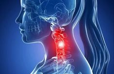 Cervical spondylosis what is it ?Cervical spondylosis non-drug therapy. Occipital Neuralgia, Cervical Spondylosis, Dor Cervical, Spine Health, Squat Workout, Oil Mix, Massage Techniques, Nerve Pain, Pain Management