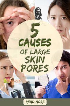 Oily Skin Remedy, Oily Skin Care, Healthy Skin Care, Skin Care Remedies, Oily Face, Face Skin, How To Close Pores, Open Pores On Face, Skin Bumps