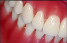 Save Your Gums: 6 Natural Ways to Fight Gum Diseases  Research has found that more that 75% of Americans have gum diseases. One of them is Gingivitis- a disease caused by bacteria that lead to inflammation of the gums. If gingivitis is left unattended it can leads to periodontitis which is more severe. This can make the inner layer of the gum to...