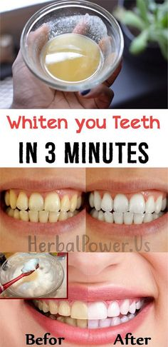 Even professional whitening performed by a dentist can lead to painful sensitivity, and the methods used are not natural in the slightest. However, don't give up hope: if you want a brighter, white…