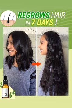 Hair Growth Tips, Natural Hair Growth, Hair Care Tips, Twisted Hair, Hair Growth Treatment, Hair Serum, Hair Remedies, Fuller Hair, Hair Health