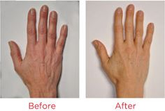 Hand Perfection® - Younger Looking Hands With Our Anti-Aging Handcare System