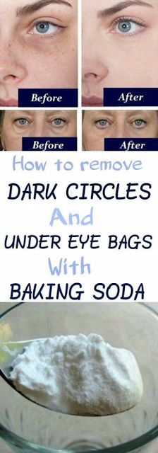 How to Remove Dark Circles And Under Eye Bags With Baking Soda So entfernen Sie Augenringe und Tränensäcke mit Backpulver Big Pores, Porto Rico, Dark Circles Under Eyes, Under Eye Bags, Eyes Problems, Tips And Tricks, Puffy Eyes, Stretch Marks, Cool Eyes
