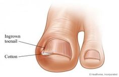 Does one of your toes hurt every time you walk? Chances are you have an ingrown toenail. Most of the time people learning how to get rid of ingrown nails are attempting to figure out how to correct pains in the big toe.