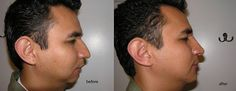 Lets have a look at the before and after pictures of Rhinoplasty surgery.Visit  https://www.aacsh.com/rhinoplasty.html for more information