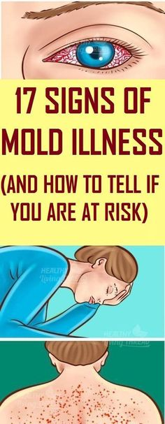 Here Are 17 Signs Of Mold Illness & Hmold illnessow To Tell If You're At Risk - Think Healthy Inbound Marketing, Marketing Digital, Endocannabinoid System, Life Quotes Love, Thinking Day, The Sims, Yoga Quotes, Bodybuilding Motivation, How To Remove