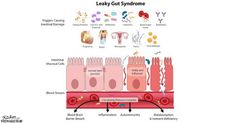 Leaky Gut Syndrome, Gut Health, Healing