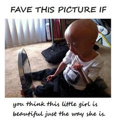 Aww yes!! I love Adalia Rose! she's soo sweet! her mum just shaved her head to make Adalia feel better about herself <3 thats soo sweet!