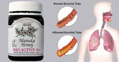 natural bronchitis treatment