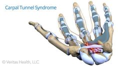 The symptoms of arthritis and carpal tunnel syndrome can be very similar, so it's important to understand the differences and get the right diagnosis.