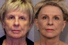 Chirurgie rajeunissement visage tunisie ou un lifting visage est capable d'enlever radicalement les rides au niveau des tempes, des joues et du front