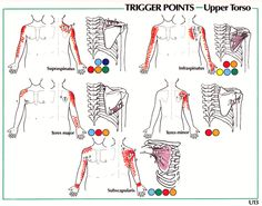 Trigger Points Referral Patterns