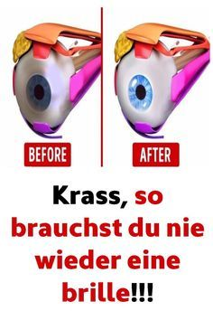 Krass, so brauchst du nie wieder eine brille! Krass, you will never need glasses again ! Related posts: I want these glasses! Curtain Round Glasses Frame Woman Retro Myopia Optical Frames Metal Clear Lens B… Health And Fitness Tips, Health And Nutrition, Health And Beauty, Health And Wellness, Health Tips, Hair Health, Gut Health, Eyes Health, How To Relieve Headaches