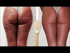 I know a lot of people hate the site of cellulite likewise me,i hate the look of it Today's video i will show you all how i get rid of my cellulite naturally. Dry Skin Remedies, Cellulite Remedies, Hair Remedies, Leg Cellulite, Stretch Marks On Legs, Body Hacks, Body Treatments, Hair Health, How To Get Rid