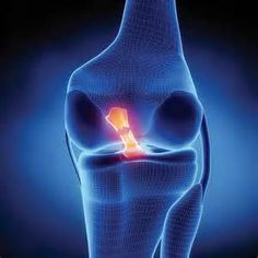 If you ski long enough, chances are pretty high that you or someone you know will end up tearing an ACL in their knee. All it takes is one freak ski accident, a bad crash or a ski binding not pre-releasing when it should have, to do some real damage to