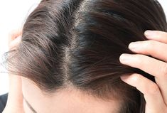 How to Get Rid of Scalp Acne Head Pimples, Top 10 Home Remedies, Pimples Remedies, Hair Trends, Hair Styles, Makeup, Surface, People, Blog