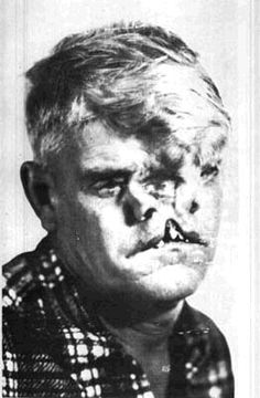"""This """"Man with Two Faces"""" is actually a photograph of sideshow performer Bill Durks.  Bill was born with a condition known as frontonasal dysplasia, a birth defect that occurs when the two halves of an embryo's face fail to come together completely. He had a deeply cleft lip and palate and a bifid, or double, nose - each half having only one nostril. What you're seeing in the photo as a third eye in the center of his face was painted on by Bill himself, to fool excitable carnival-goers."""
