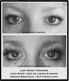 Brows, Lashes, Crows Feet, Rodan And Fields, Happy New Year, Sensitive Skin, Mascara, Health, Fitness
