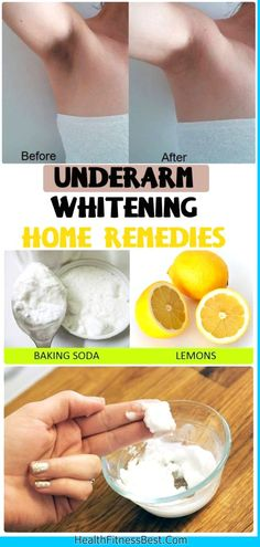 Underarm Whitening Home Remedies #remedies #diy #health #skincare #skin #underarm #beauty