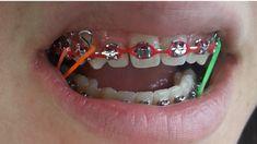 Braces Girls, Braces Colors, Brace Face, Rubber Bands, Orthodontics, Smile, Box, Beautiful, Braces