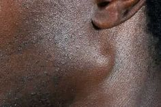 Pictures of Bumps on Skin: Cysts, Skin Tags, Lumps, and More Skin Bumps, Skin Tag, Skin Care Remedies, Skin Problems, Tags, Pictures, Photos, Skin Care Products, Mailing Labels