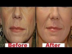 How To Remove Mouth Wrinkles In 3 Days by Using This Remedy, home remedies for wrinkles, Remove Facial Wrinkles Home Remedies. How to remove face wrinkles. Lip Wrinkles, Face Cream For Wrinkles, Prevent Wrinkles, Korean Skincare, Prévenir Les Rides, Home Remedies For Wrinkles, Wrinkle Remedies, Cellulite Scrub, How To Line Lips