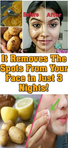 Remove Dark Spots on Your Face in Just 3 Nights - Health and Beauty Skin Care Treatments, Acne Treatment, Skin Tips, Skin Care Tips, Home Remedies For Hair, Before Wedding, Skin Care Remedies, Dry Face Remedies, Hygiene