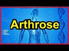 Ernährung bei Arthrose was hilft gegen Arthrose