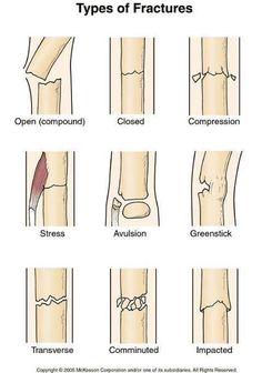 How to Use a Sam Splint to Treat Bone Fractures - Medizinstudium - Nursing School Notes, Medical School, Nursing Schools, Lpn Schools, Med Student, Student Nurse, Types Of Fractures, Medical Anatomy, Grey's Anatomy