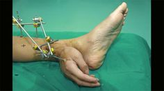BBC - Future - Health - The best science and technology pictures of the week - Chinese doctors kept Xie Wei's severed hand alive by grafting it to his ankle, before managing to replant the hand back on his arm. (Getty Images)